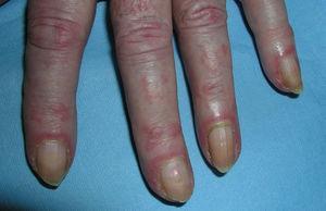 Eritema periungueal y cutículas hipertróficas presentes en todos los dedos de la mano.