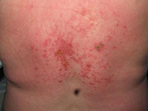 Lesiones cutáneas necróticas en la espalda.