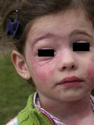 Urticaria de contacto intensa, con angioedema asociado, en la cara y el cuello de una niña de 5 años tras jugar en un arenero cercano a pinos infestados por TP.
