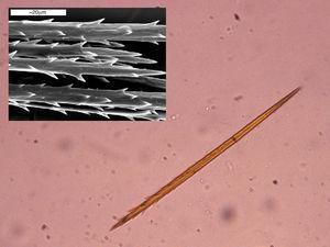 Imagen al microscopio óptico de un pelo urticante (x40). Con microscopía electrónica se puede observar su forma arponada que les permite clavarse en la piel y en las mucosas.