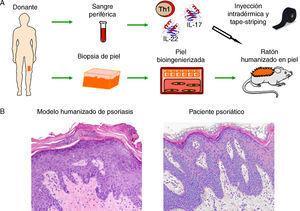 Modelización de enfermedades cutáneas de alta prevalencia. (A) Modelo humanizado de psoriasis basado en la inyección intradérmica, en la piel humana regenerada, de subpoblaciones de células T diferenciadas a un fenotipo T1 junto con la inyección de citoquinas de tipo Th17, (IL-17 e IL-22) seguido de la eliminación/perturbación mecánica del estrato córneo mediante tape-striping. (B) El modelo recapitula las principales características fenotípicas de la enfermedad tales como elongación y fusión de los puentes interpapilares, paraqueratosis, aumento de la vascularización y capilares dilatados, entre otras (H&E, 20×).