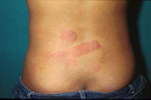 La espalda es una zona a menudo escogida por los maltratadores para descargar su frustración. (Imagen gentilmente cedida por el Dr. Jordi Pou del Hospital Sant Joan de Déu, Barcelona, España.)