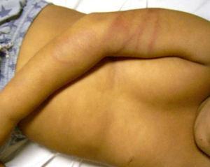 La linealidad en los brazos que envuelve la zona es típico de los azotes con correas. (Imagen gentilmente cedida por el Dr. Jordi Pou del Hospital Sant Joan de Déu de Barcelona.)