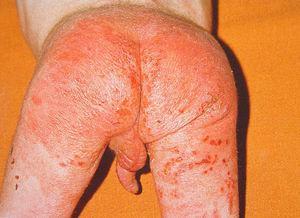 En el maltrato por negligencia la zona del pañal es la más comúnmente afectada. (Imagen gentilmente cedida por el Dr. Jordi Pou del Hospital Sant Joan de Déu, Barcelona, España.)