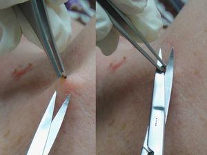 Aplicación de la técnica de corte tangencial con tijera en el caso de un fibroma.