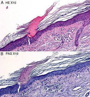 Arriba hematoxilina-eosina, x10. Lesión de poroqueratosis actínica. Abajo, PAS, x10.
