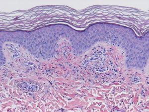 Vasculitis leucocitoclástica: leucocitoclastia, extravasación hemática (H-E, x10).