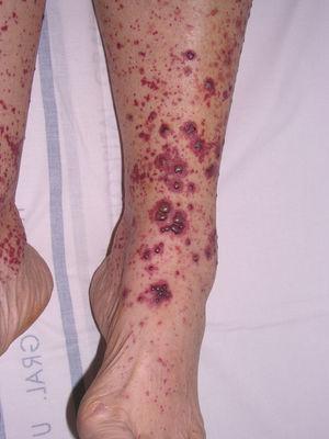 Forma vesiculoampollosa de vasculitis leucocitoclástica cutánea de pequeño vaso.
