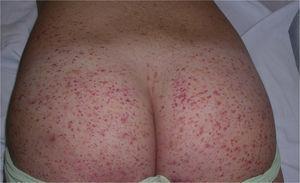 La presencia de lesiones en los glúteos es habitual en la púrpura de Schönlein-Henoch.