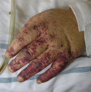 Máculas purpúricas de predominio acral: vasculitis crioglobulinémica.