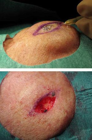 Tras la anestesia tumescente el sangrado es escaso y la disección por planos más sencilla.