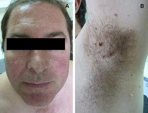 Tricodiscomas y fibrofoliculomas en paciente con síndrome Birt-Hogg-Dubé.