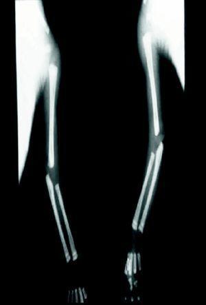 Radiografía de extremidades superiores con imágenes osteolíticas en metafisis proximal y distal de húmero, cúbito y radio bilateral.