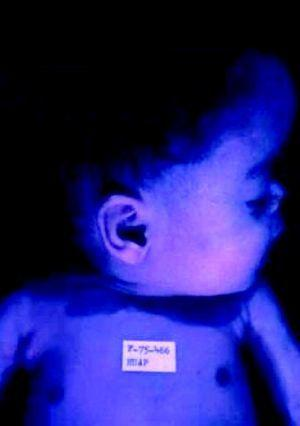 Frontal prominente y nariz en silla de montar en un niño con sífilis congénita tardía..