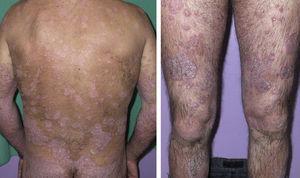 Placas eritematodescamativas generalizadas previas al inicio del tratamiento con etanercept.