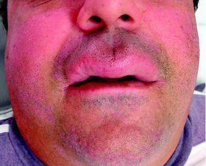 Edema del labio superior correspondiente al paciente 1.