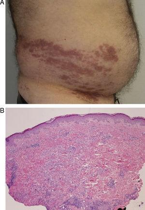 Caso 2: A. placas eritemato-marronáceas en flanco derecho, que confluyen sobre el dermatomo T10. B. dermatitis perivascular e intersticial linfohistiocitaria (hematoxilina-eosina x10).