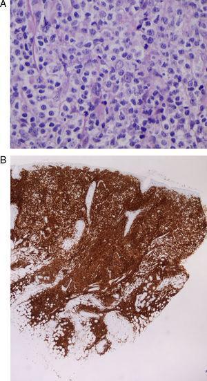 Caso 9: A. células de tamaño mediano-grande, de estirpe linfoide, con núcleos y nucléolos prominentes que presentan actividad mitótica (hematoxilina-eosina x20). B. infiltrado tumoral de crecimiento difuso en dermis, CD5 positivo, que se corresponde con infiltración específica cutánea de su LLC-B (marcador CD5, x4).