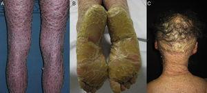 Características clínicas de la IL. A.Descamación laminar marronácea. B. Marcada hiperqueratosis plantar. C. Alopecia cicatricial en el cuero cabelludo.