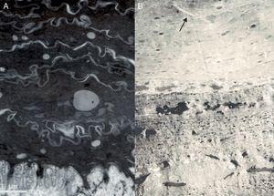 Imágenes de microscopía electrónica. A.Ictiosis congénita tipo 1 mostrando gotas lipídicas en el estrato córneo y ausencia de marcadores ultraestructurales de los demás tipos de ictiosis. B.Ictiosis congénita tipo 2 caracterizada por la presencia de cristales de colesterol (flecha) en los corneocitos.