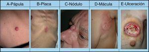 Lesiones cutáneas elementales en la manifestación clínica de las metástasis cutáneas. A. Metástasis de adenocarcinoma gástrico. Pápula de 7mm en abdomen. B. Metástasis de adenocarcinoma de ovario en forma de placa. C. Metástasis de carcinoma urotelial vesical en forma de nódulo. D. Metástasis de adenocarcinoma de mama que comenzó como una mácula sobre la cicatriz de una mastectomía previa. E. Placa infiltrada ulcerada correspondiente a una metástasis de un adenocarcinoma pulmonar.