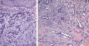 Imágenes histológicas de metástasis cutáneas. A. Metástasis dérmica por carcinoma pobremente diferenciado de origen desconocido. Infiltración de la dermis por cordones y nidos de células epitelioides (H-E x10). B. Metástasis dérmica por adenocarcinoma pancreático moderadamente diferenciado. Luces glandulares tapizadas por una capa de células epiteliales entre los haces colágenos dérmicos (H-E x10).