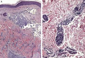 A. Metástasis dérmica por carcinoma de ovario. Vasos sanguíneos en La dermis dilatados y ocupados por células epiteliales atípicas (H-E x20). B. Infiltración dérmica y vascular extensa (linfangitis carcinomatosa) por un carcinoma pobremente diferenciado.