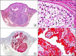 Hidradenoma apocrino de células claras. A. Visión panorámica (x10). B. Detalle a gran aumento de un agregado de células neoplásicas mostrando su morfología de células claras (x400). C. El mismo caso estudiado inmunohistoquímicamente con citoqueratina 8 (x10). D. Detalle de la positividad para citoqueratina 8 de las células neoplásicas (x400).