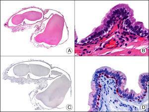 Quiste de prepucio en un recién nacido. A. Visión panorámica (x10). B. Detalle del epitelio de la pared del quiste con una hilera de células periféricas cuboideas y una hilera luminal de células columnares (x400). C. El mismo caso estudiado inmunohistoquímicamente con p63 (x10). D. Detalle a gran aumento donde se observa positividad del p63 en los núcleos de las células de la hilera periférica, que probablemente corresponden a células mioepiteliales (x400).