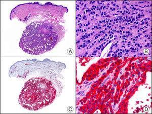 Glomangioma cutáneo. A. Visión panorámica (x10). B. Detalle a gran aumento de las células neoplásicas alrededor de las luces vasculares mostrando su núcleo redondo y monomorfo y escaso citoplasma (x400). C. El mismo caso estudiado inmunohistoquímicamente con actina alfa de músculo liso (x10). D. Detalle de la positividad de las células neoplásicas para la actina alfa de músculo liso (x400).