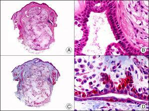 Tumor mixto apocrino. A. Visión panorámica (x10). B. Detalle a gran aumento de las estructuras ductales alargadas tapizadas por una doble hilera de células (x400). C. El mismo caso estudiado inmunohistoquímicamente con calponina (x10). D. Detalle de la positividad para calponina de las células de la hilera periférica que tapiza los ductos, apoyando su naturaleza mioepitelial (x400).