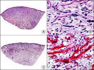 Rabdomiosarcoma cutáneo. A. Visión panorámica (x10). B. Detalle de las células neoplásicas mostrando un núcleo atípico, alargado e hipercromático (x400). C. El mismo caso estudiado inmunohistoquímicamente con MyoD (x10). D. Detalle de la positividad de las células neoplásicas con MyoD (x400).