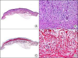 Fibroma dérmico en placa. A. Visión panorámica mostrando una lesión con infiltración horizontal de la dermis superficial (x10). B. A gran aumento se observa que la lesión está constituida por células fusiformes dispuestas en remolinos alrededor de los vasos (x200). C. El mismo caso estudiado inmunohistoquímicamente con CD34 (x10). D. Detalle de la positividad para el CD34 de las células neoplásicas (x200).