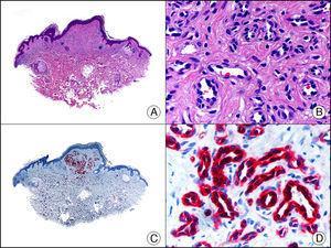 Hemangioma capilar lobulillar. A. Visión panorámica (x10). B. Detalle de los capilares tapizados por células endoteliales que constituyen la lesión (x400). C. El mismo caso estudiado inmunohistoquímicamente con WT1 (x10). D. Detalle de la positividad para el WT1 en el núcleo de las células endoteliales proliferantes (x400).