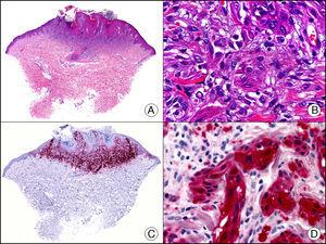 Nevo de Spitz. A. Visión panorámica (x10). B. Detalle de los melanocitos con núcleo vesiculoso, nucléolo prominente y citoplasma amplio y eosinófilo (x400). C. El mismo caso estudiado inmunohistoquímicamente con proteína S100 (x10). D. Intensa positividad de los melanocitos neoplásicos para la proteína S100 (x400).