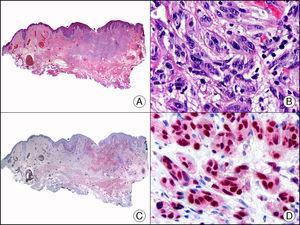 Melanoma desmoplásico. A. Visión panorámica (x10). B. Detalle de los melanocitos neoplásicos en la dermis reticular (x400). C. El mismo caso estudiado inmunohistoquímicamente con Sox 10 (x10). D. Detalle de la positividad nuclear para Sox 10 de los melanocitos neoplásicos de la dermis (x400).
