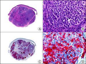 Tumor de Merkel. A. Visión panorámica (x10). B. Detalle de las células neoplásicas mostrando un núcleo redondo con cromatina granular (x400). C. El mismo caso estudiado inmunohistoquímicamente con cromogranina (x10). D. Positividad de las células neoplásicas para la cromogranina (x400).