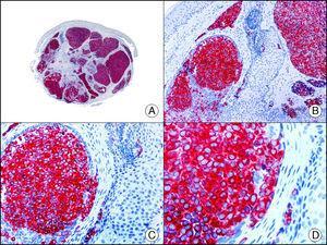 El mismo caso de la figura anterior estudiado inmunohistoquímicamente con sinaptofisina (A x10, B x40, C x200, D x400).