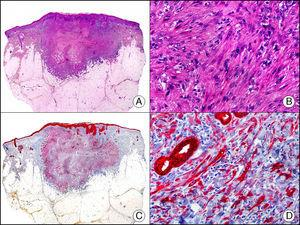 Carcinoma espinocelular muy indiferenciado con apariencia sarcomatoide. A. Visión panorámica (x10). B. Detalle de las células neoplásicas mostrando una morfología fusocelular y sin evidencia de queratinización (x400). C. El mismo caso estudiado inmunohistoquímicamente con pancitoqueratina MNF116. Obsérvese la positividad de la epidermis y del epitelio de los anejos de la dermis como control positivo interno (x10). D. A gran aumento, se observa cómo, además de los ductos ecrinos, algunas células neoplásicas expresan positividad para la pancitoqueratina MNF116 en su citoplasma (x400).