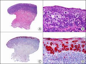 Metástasis epidermotropa de carcinoma de vejiga en la mucosa del glande simulando enfermedad de Paget extramamaria. A. Visión panorámica (x10). B. A mayor aumento se observan células grandes de núcleo pleomórfico y citoplasma amplio salpicadas por todo el espesor del epitelio (x400). C. El mismo caso estudiado inmunohistoquímicamente con citoqueratina 7 (x10). D. A mayor aumento, se observa cómo las células neoplásicas intraepiteliales expresan citoqueratina 7 (x400).