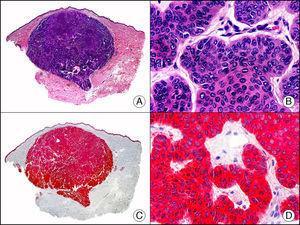 Carcinoma basocelular. A. Visión panorámica (x10). B. A mayor aumento se observan islotes de células basaloides (x400). C. El mismo caso estudiado inmunohistoquímicamente con citoqueratina 14 (x10). D. Detalle de la positividad para la citoqueratina 14 de las células neoplásicas (x200).