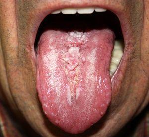 Lesión globulosa, elástica y de color rosado en la línea media del dorso de la lengua.
