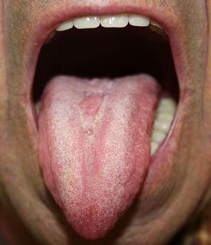 Aspecto de la lesión tras un mes de tratamiento con antifúngicos tópicos y reducción del consumo de tabaco.