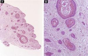 Inclusiones epidermoides subungueales. A) Hematoxilina-eosina ×10. La dermis contiene varias estructuras quísticas repletas de queratina. B) Hematoxilina-eosina ×40. Detalle de las inclusiones quísticas.