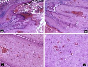 Queratoacantoma distal digital. Imagen de bajo aumento. A y B) Hematoxilina-eosina ×10 mostrando hiperqueratosis, acantosis e hipergranulomatosis del epitelio junto con una proliferación lobular de células escamosas intensamente eosinofílicas que proviene del epitelio. C) Hematoxilina-eosina ×20 y D) ×40 que muestran las células escamosas bien diferenciadas y de citoplasma brillante eosinofílico con disqueratosis focal.