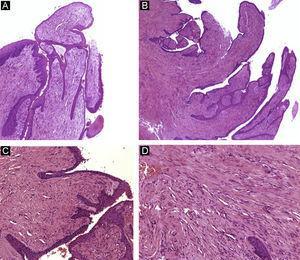 Onicomatricoma. A y B) Hematoxilina-eosina ×10 mostrando acantosis del epitelio y un tumor fibroepitelial con proyecciones vellosas. C) Hematoxilina-eosina ×20. Detalle de las proyecciones fibrosas recubiertas de epitelio. D) Hematoxilina-eosina ×40. Gran aumento mostrando las células fusiformes embebidas en estroma colagenoso.