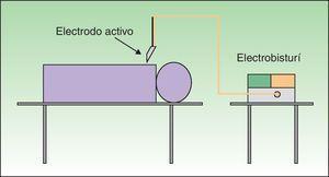 Circuito bipolar: la electricidad fluye entre los 2 extremos de la pinza (electrodo activo) sin pasar por el paciente.