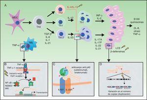 A. Principales vías patogénicas en la psoriasis con implicaciones genéticas: las células dendríticas mieloides, tras activarse por diversas citocinas tales como TNF-α, IFN-α, IFN-γ e IL-6, producen IL-12 e IL-23. Los linfocitos T naïve, en presencia de factor de crecimiento tumoral (TGF) β, IL-6, IL-1 e IL-21, se diferencian a linfocitos Th17, que expresan el receptor de IL-23 y proliferan en presencia de esta citocina. Los linfocitos Th17 producen IL-17A, IL-17F, IL-22 e IL-21, que activan a los queratinocitos desde el punto de vista inmunológico y proliferativo, dando lugar a la producción de TNF-α, IL-1, IL-6, IL-8, S100A7 y otras proteínas S100 y péptidos antimicrobianos (β-defensinas). A). La unión de TNF-α a su receptor activa una cascada de señales que da lugar a la liberación de NFκB de su complejo inhibitorio NFκB essential modulator/inhibitor of κB kinase (NEMO/IKK), lo que determina la transcripción de A20, un regulador negativo de la NFκB potenciado por la proteína ABIN-1. La psoriasis se asocia con determinados polimorfismos en los genes que codifican estas 2 proteínas inhibitorias. B). La inhibición de la señalización mediada por IL-23 constituye el mecanismo de actuación de los anticuerpos monoclonales inhibidores de la p40, como ustekinumab. La psoriasis también se asocia con polimorfismos de los genes que codifican las subunidades p19 y p40 de la IL-23 y la IL-12/IL-23, respectivamente, así como una subunidad del receptor de IL-23. C).Se ha descrito la asociación de CNV en los genes de proteínas del LCE y β-defensinas humanas con la psoriasis. CNV: copy number variants; LCE: late cornified envelope; MDC: las células dendríticas mieloides. Fuente: modificada de Duffin et al.45.