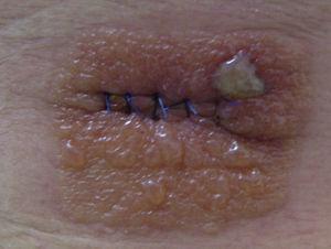Dermatitis aguda por PVP-I que dibuja la morfología del apósito oclusivo utilizado tras la extirpación de un nevus en el quirófano de Dermatología (caso 4).