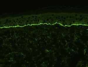 Depósitos lineales de C3 en la membrana basal, observados mediante inmunofluorescencia directa (×200) en la piel de un paciente con penfigoide ampolloso.